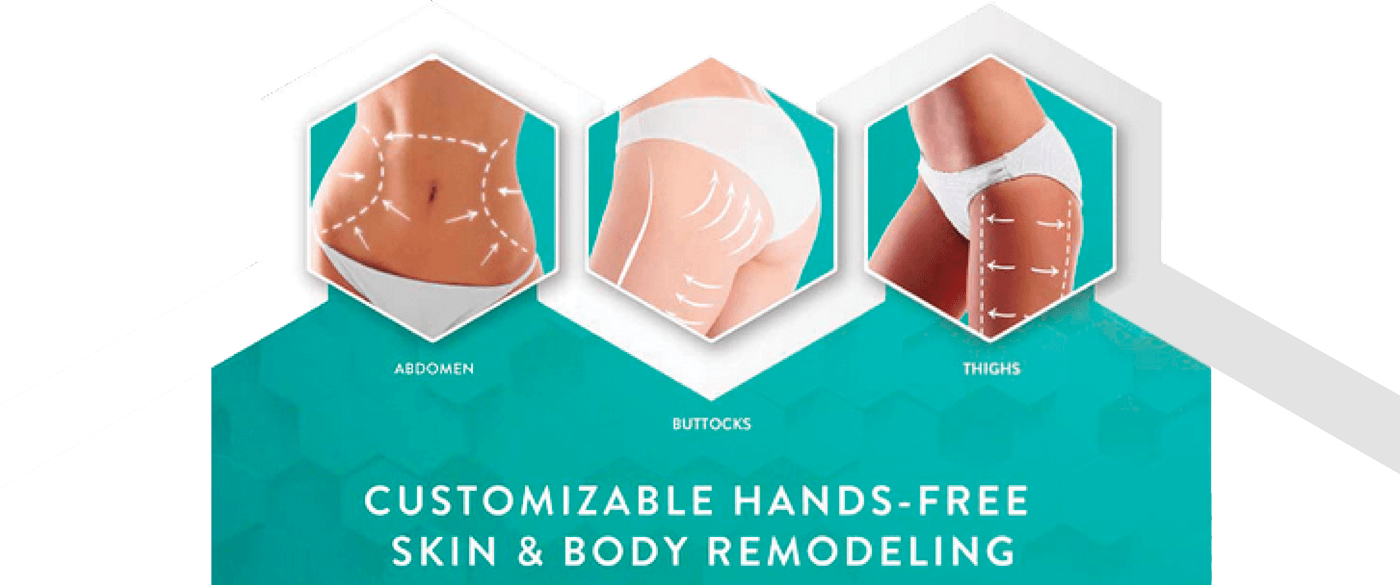 Evolve body contouring areas of treatment displayed