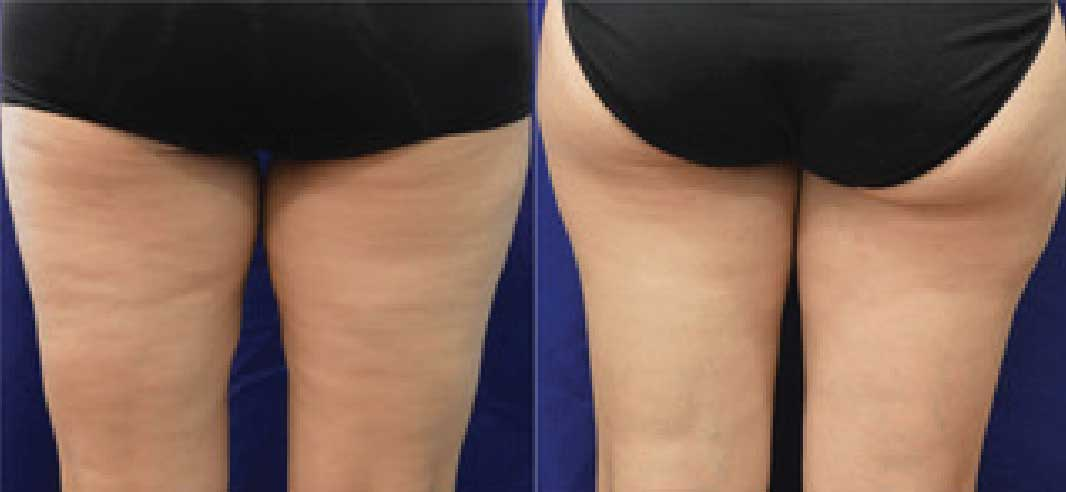 Before and after images of buttocks treated with Evolve by InMode.