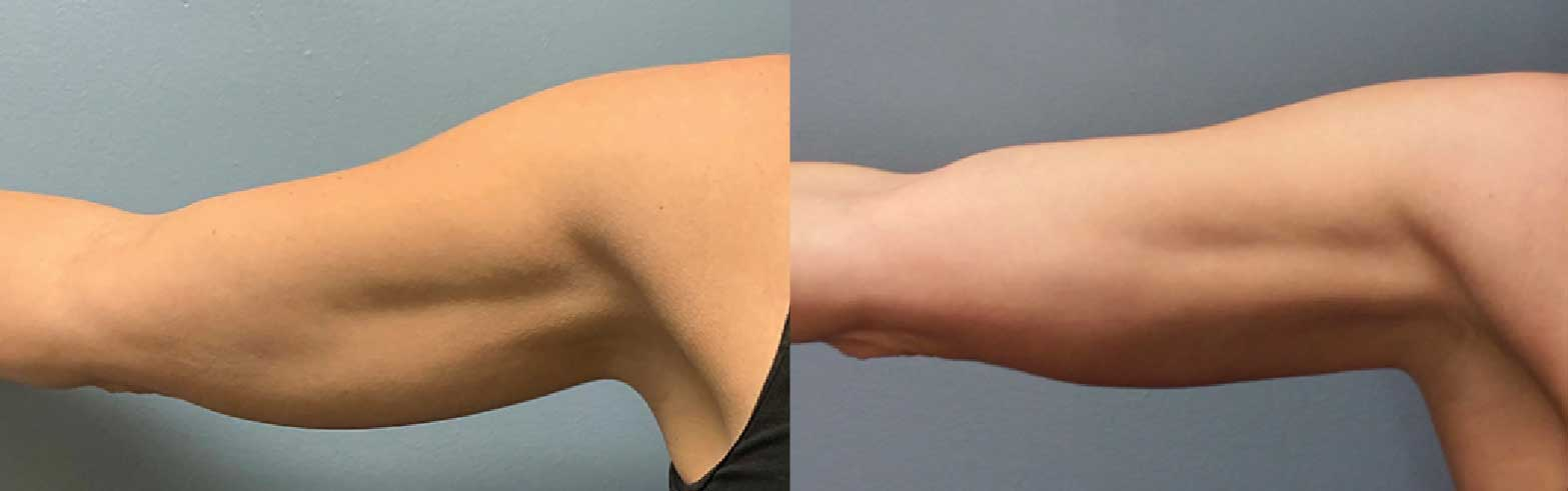 Before and after images of arms treated with Evolve by InMode.