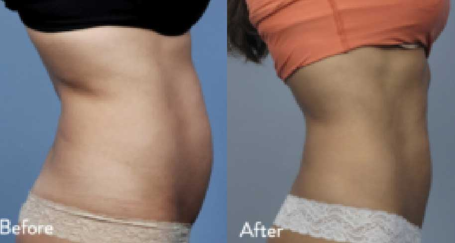 Before and after images of belly treated with Evolve by InMode.