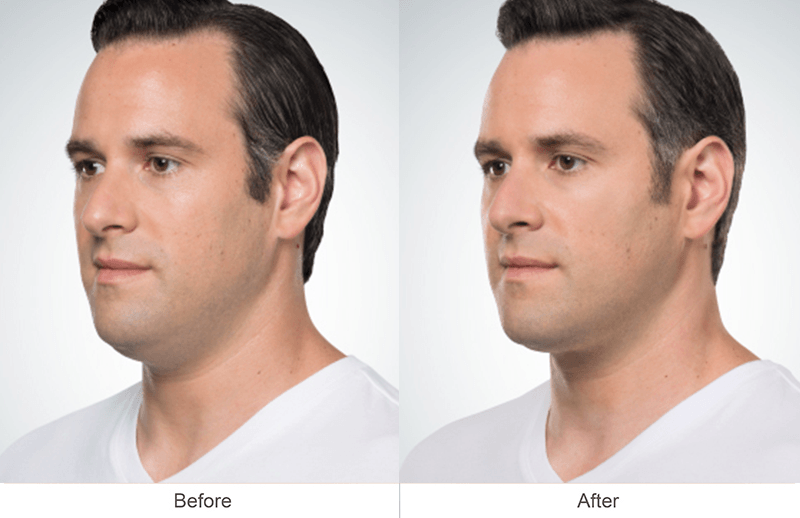 Before and after Kybella treatment on a man