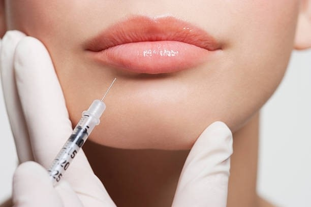 Woman receiving lip filler injection