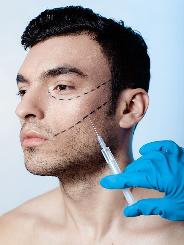 Man getting facial filler injection